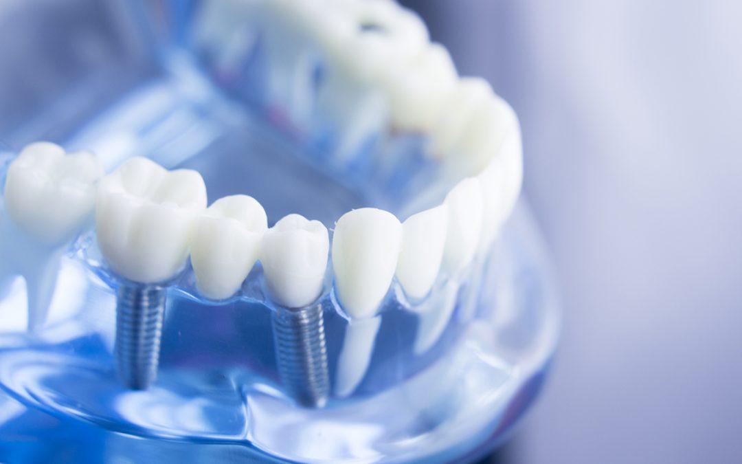 Ventajas de colocarse implantes dentales en Dr. Plaza