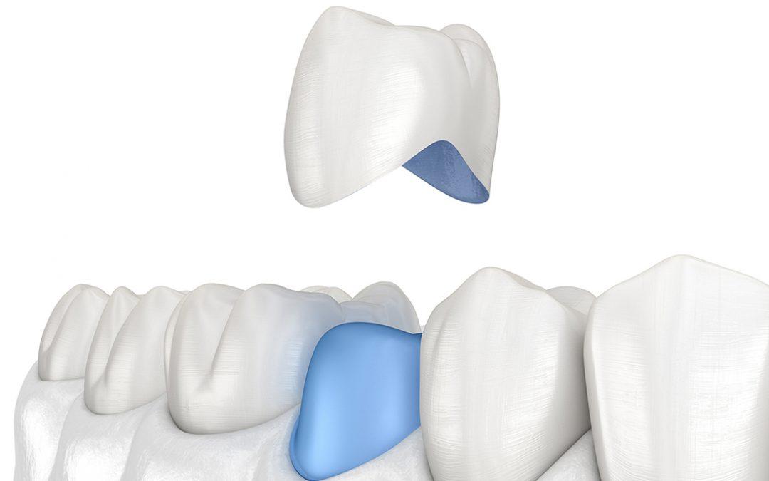 Carillas dentales o coronas: ¿qué necesita mi sonrisa?
