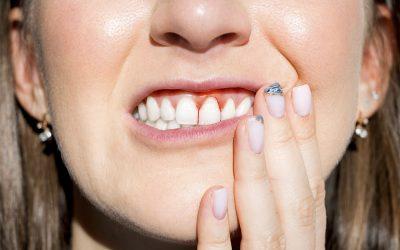 ¿Cómo actuar frente a la gingivitis?